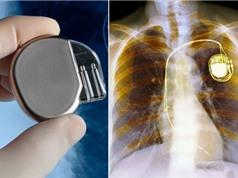 Sắp có máy điều hoà nhịp tim không dùng pin
