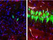 Giữa sự sống và cái chết: Các nhà khoa học đã có thể hồi sinh tế bào trong não lợn đã chết