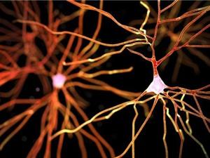 Phát hiện một dạng mất trí nhớ mới dễ nhầm với Alzheimer