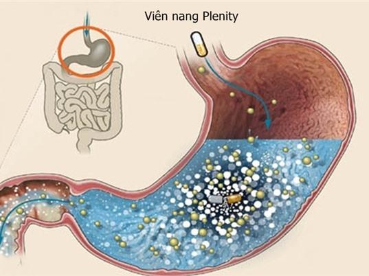 Viên nang giúp giảm cân và điều trị béo phì