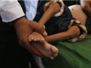 Nạn đói trên thế giới gia tăng: 820 triệu người gặp nguy cơ