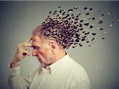 Xét nghiệm máu chẩn đoán chính xác Alzheimer trước 20 năm