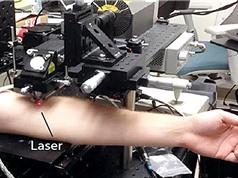 Công nghệ laser giúp phát hiện sớm và tiêu diệt tế bào ung thư