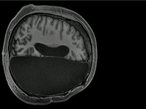 Nghiên cứu MRI tiết lộ cách một số người sống bình thường chỉ với... nửa bộ não