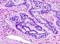 Phát hiện yếu tố bất ngờ liên quan tới 80% trường hợp ung thư ruột