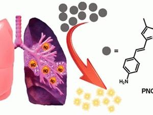 Các nhà khoa học tìm ra cách phát hiện sớm bệnh xơ phổi