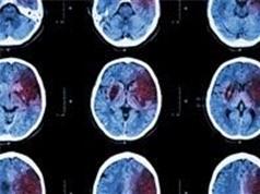 Anh tìm được cách phòng ngừa phù nề não sau đột quỵ
