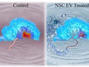 Exosome tiết từ tế bào gốc có thể điều trị đột quỵ