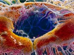 Chỉnh sửa gene trực tiếp trên cơ thể người để chữa bệnh mù lòa bẩm sinh