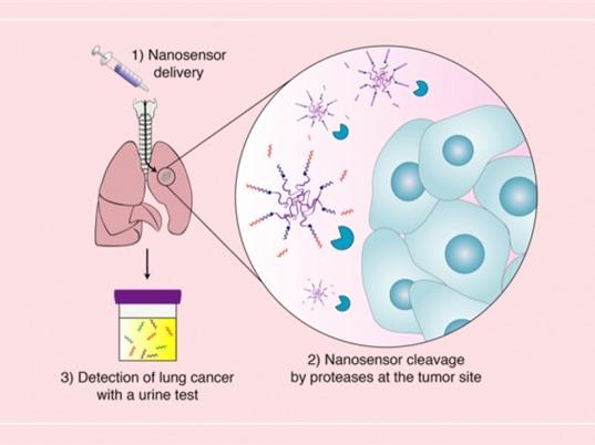 Cảm biến nano giúp phát hiện sớm u phổi
