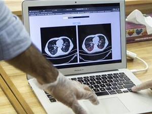 Iran công bố hệ thống chẩn đoán COVID-19 dựa trên công nghệ AI
