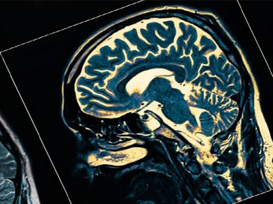 Điều trị Alzheimer bằng kỹ thuật siêu âm