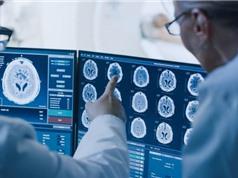 Intel tham gia nghiên cứu sử dụng AI để phát hiện sớm các khối u não