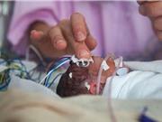 Những vấn đề sức khỏe về lâu dài ở trẻ sinh non (Phần 2)