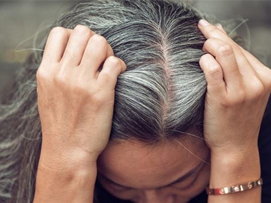 Căng thẳng khiến tóc bạc màu?