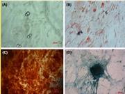 Ghép tế bào gốc đồng loài: Niềm hi vọng mới cho những người tắc nghẽn phổi mãn tính