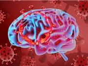Covid-19 có thể gây biến chứng não