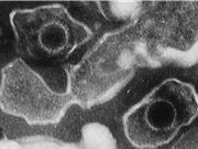 Phát hiện cấu trúc nguyên tử đầu tiên của virus gây herpes
