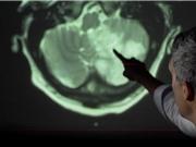 Giới khoa học đau đầu về tác động của COVID-19 tới hệ thần kinh