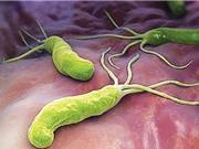Viên nổi trong dạ dày Clarithromycin