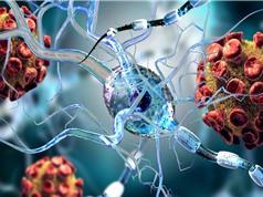 Virus SARS-CoV-2 có thể tấn công các tế bào não