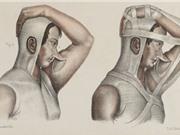 Lược sử phẫu thuật thẩm mỹ