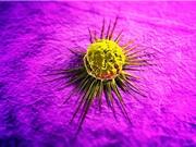 Ung thư ngày càng trở thành bệnh mãn tính, bùng phát theo giai đoạn