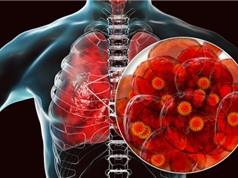 Xác định được cách thức virus SARS-CoV-2 xâm nhập và phá tế bào phổi