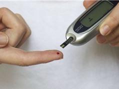 Phẫu thuật đường tiêu hóa có thể chữa khỏi bệnh tiểu đường loại 2