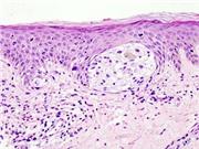 Vắc-xin tạo ra phản ứng chống khối u kéo dài ở bệnh nhân ung thư hắc tố