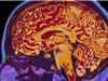 Covid liên quan đến nguy cơ mắc bệnh tâm thần và rối loạn não