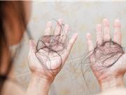 Covid-19 có thể gây ra chứng rụng tóc