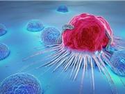 Sử dụng ánh sáng cửa sổ sinh học cận hồng ngoại thứ ba tiêu diệt tế bào ung thư