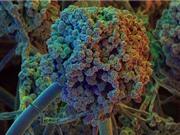 Nấm đe dọa sức khỏe bệnh nhân Covid-19 nhập viện