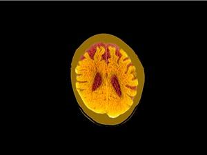 Chấn thương sọ não nhẹ cũng làm tăng nguy cơ sa sút trí tuệ