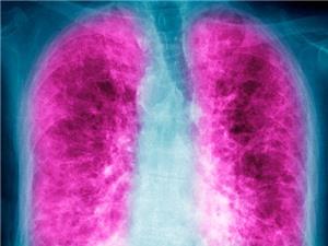 Xơ phổi: Bệnh hô hấp chết người ít ai biết