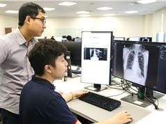 Thi ứng dụng AI phát hiện điểm bất thường trên ảnh X-quang lồng ngực người Việt