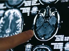 Covid-19 làm giảm lượng chất xám trong não