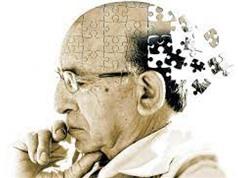 Phương pháp mới chẩn đoán bệnh Alzheimer với độ chính xác 90%