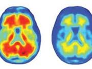 FDA phê duyệt thuốc điều trị Alzheimer mới