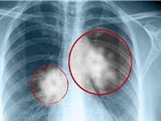 Chẩn đoán sớm bệnh bụi phổi silic nhờ các kỹ thuật tiên tiến