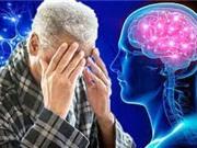 Thử nghiệm vaccine phòng bệnh Alzheimer
