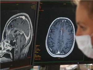 COVID gây hại cho não bộ như thế nào?