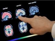 Thử nghiệm sử dụng trí tuệ nhân tạo để chẩn đoán sớm chứng sa sút trí tuệ