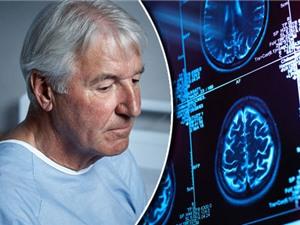 Vi khuẩn đường ruột có thể làm chậm quá trình lão hóa não