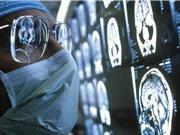 Thử nghiệm siêu âm mang lại hy vọng cho bệnh nhân ung thư não